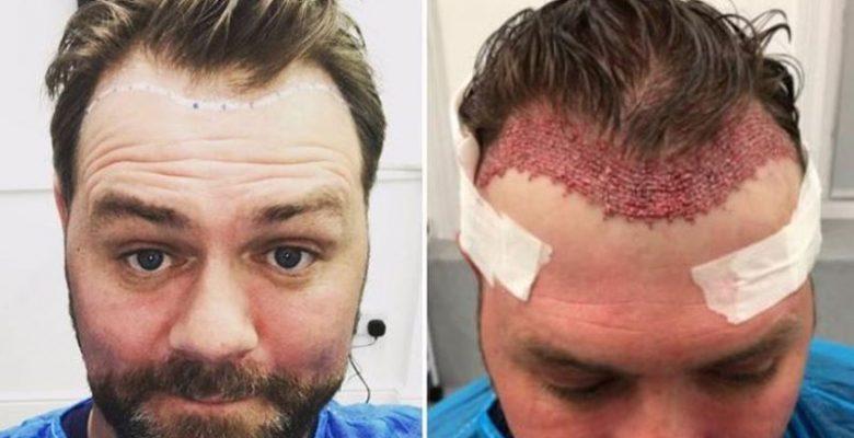Transplantasi Rambut: 8 Tips Penting Yang Perlu Dipertimbangkan